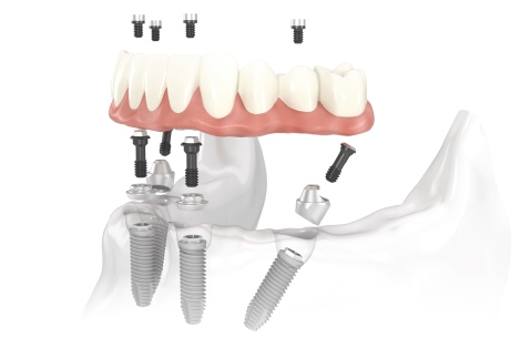 All on four Dentalevo